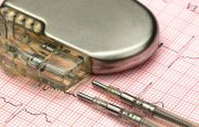 What to Ask Your Doctor Before Getting a Pacemaker for AFib