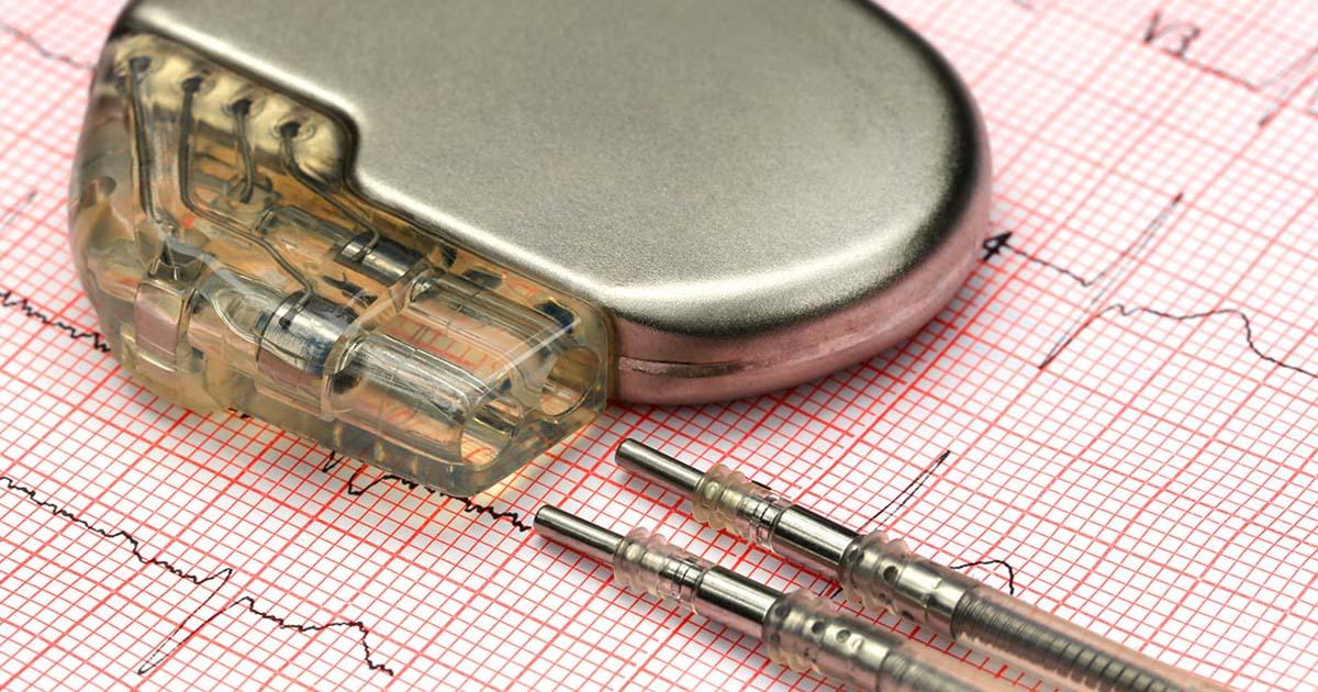Pacemaker on ECG sheet