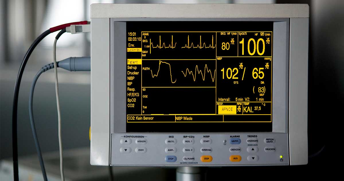a vitals and heart monitor machine at the hospital: one of the ways to identify irregular heartbeat
