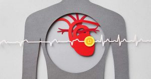 A grey, red, and yellow graphic showing where the heart is with a heart monitor line.